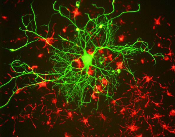 Neuron_in_tissue_culture (1)
